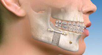 Orthognathic Procedures